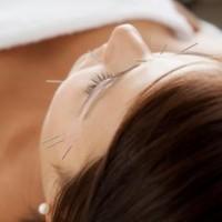 Behandling af grøn stær med akupunktur