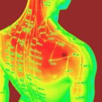 Prøv lykken med akupunktur